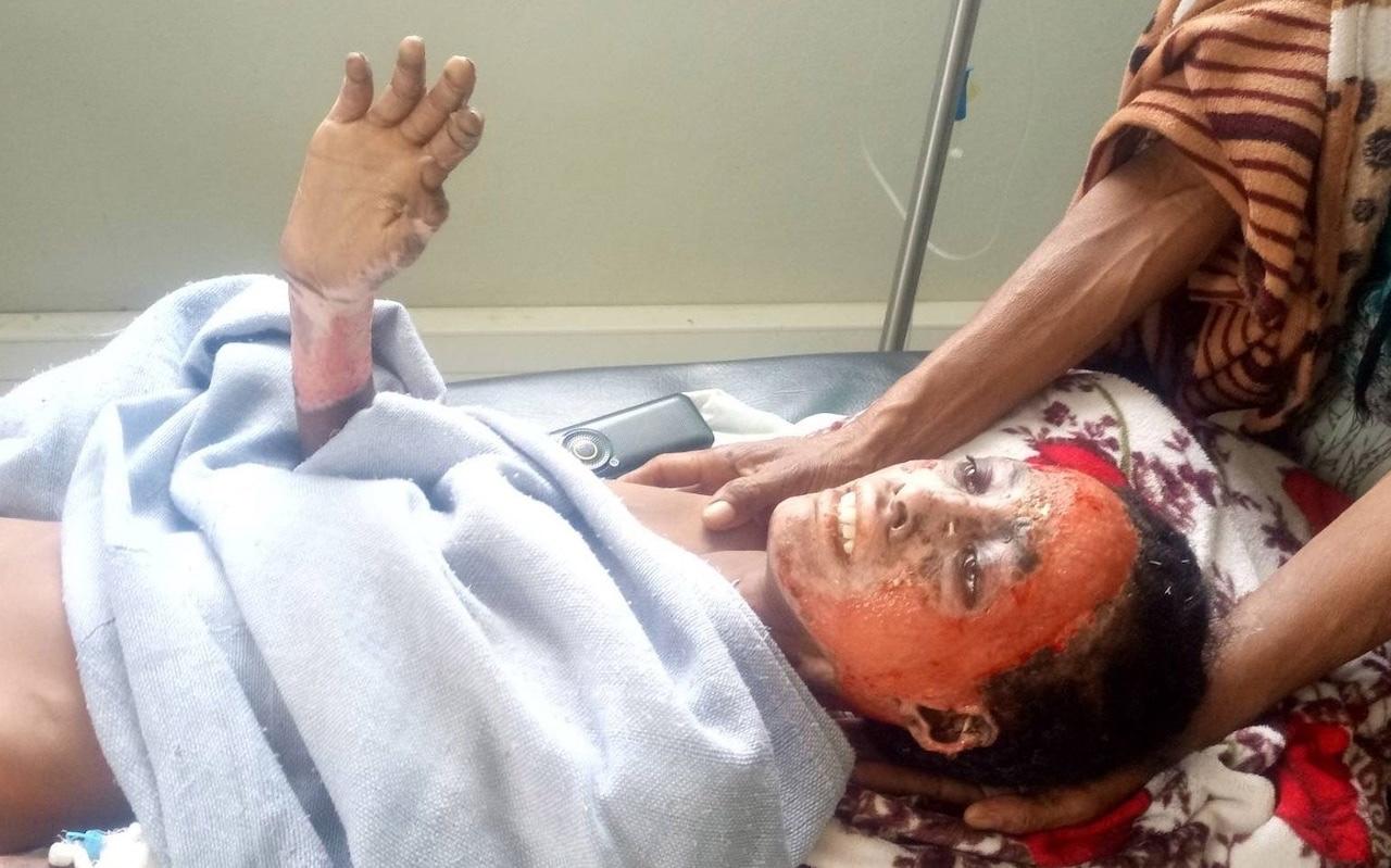 Ethiopians suffer horrific burns in suspected white phosphorus attacks